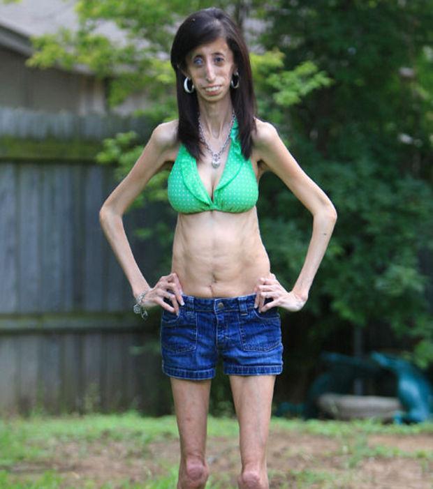 la-femme-la-plus-moche-du-monde-lizzie-velasquez-en-bikini-et-mini-short_112896_w620.jpg.279b140dca3b6202d8b31e910fa05e18.jpg