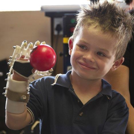 robohand greffe doigts main imprimante 3D