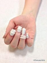 bijoux d'ongle bague imprimé en 3D