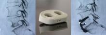 Implant vertébral imprimé en 3D