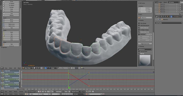 appareil dentaire 3D