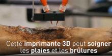 imprimante 3D peau brulure