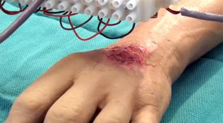 imprimante 3D blessure brulure peau