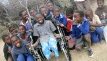 photo prothese main pied enfant Zimbabwe