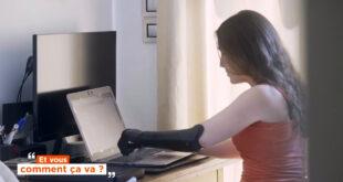 prothèse bionique 3D femme